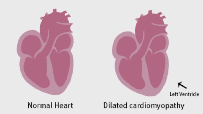 Mutaciones que causan cardiomiopatía dilatada