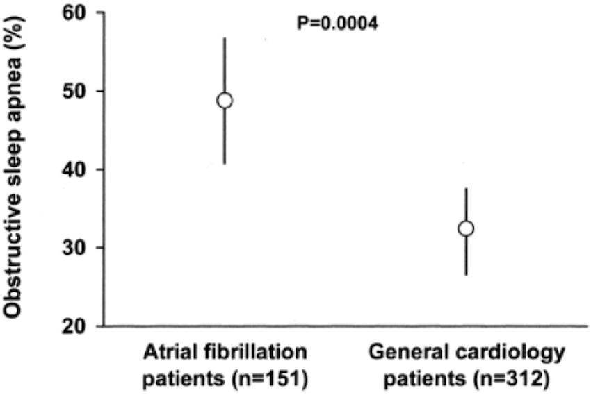 Apnea del sueño y fibrilación auricular