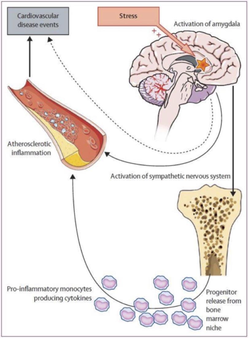 Estrés crónico: cómo desencadena eventos cardiovasculares