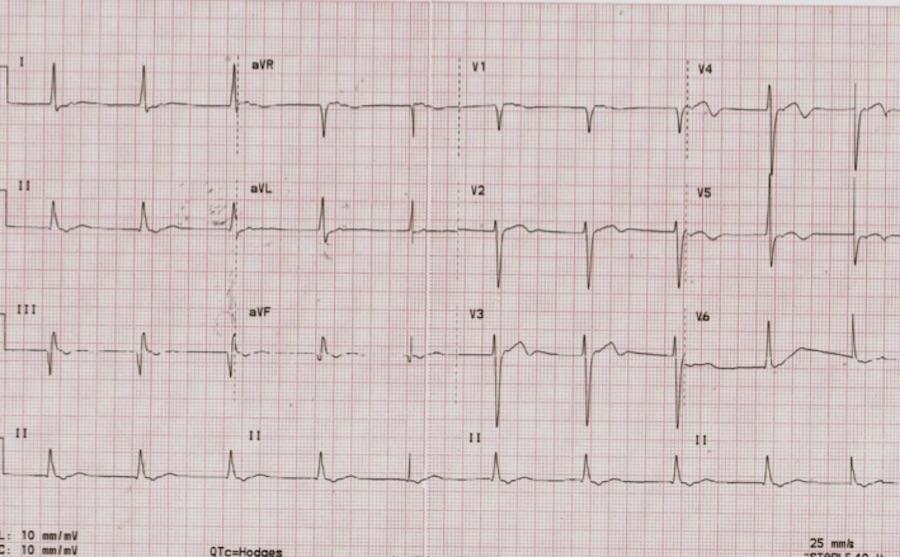 ECG SAC #18