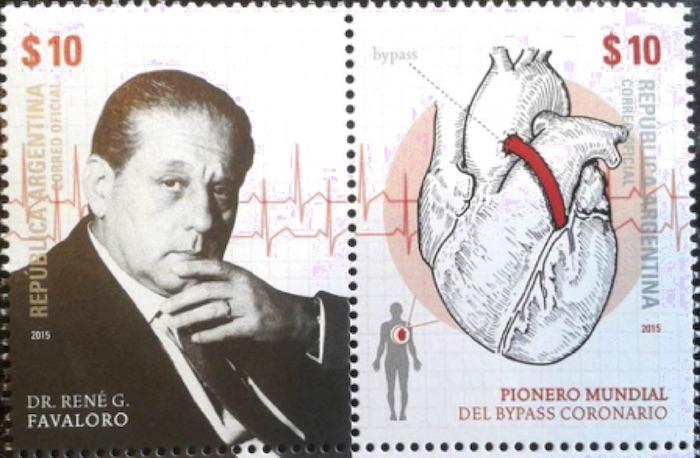 El impacto del bypass coronario, 50 años después