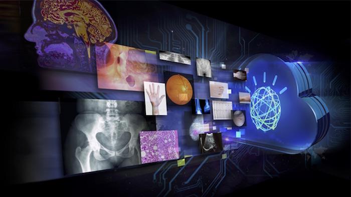 Inteligencia artificial: ¿Reemplazarán las máquinas a los cardiólogos?