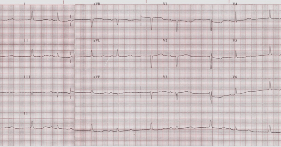ECG SAC #24