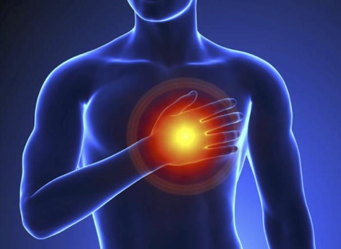 Polémica por el uso de stents en angina estable