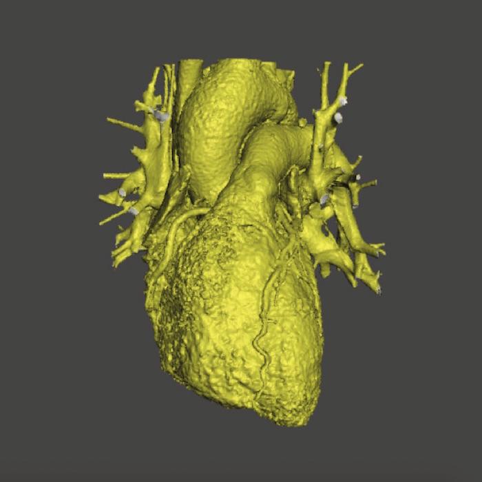 La impresión 3-D llega al corazón